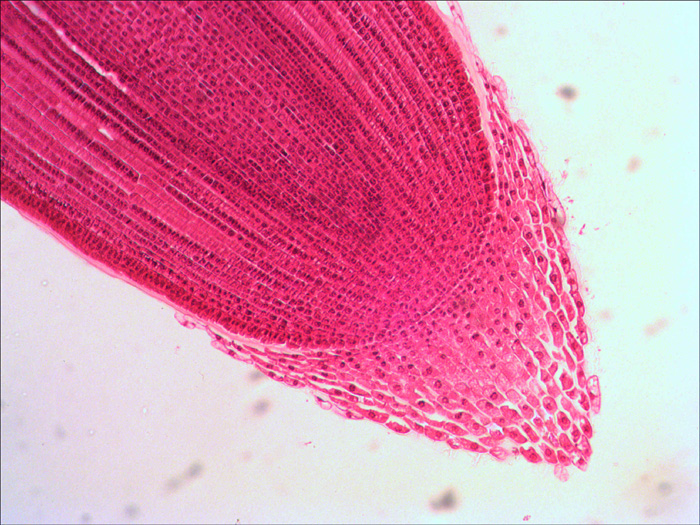 Root cap under a microscope